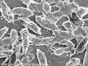Housecall for Health: What Exactly is a Flesh-Eating Bacteria?
