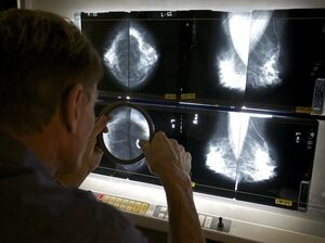 Radiation May Raise Breast Cancer Risk In Some Women