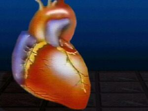 Some Migraines Linked to Heart Risks