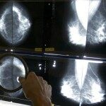 Study: Breast Cancer Rates Rising in Young Women