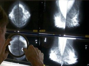 Breast Cancer Study