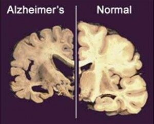 Alzheimers Research