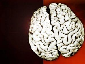 4-29 Brain