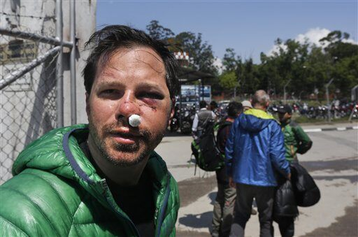 U.S. citizen Michael Churton, 38, from New York, who was injured during an avalanche resulting from Saturday�'s earthquake at the base camp of the mount Everest, arrives at the domestic airport in Kathmandu, Nepal, Monday, April 27, 2015. Saturday's magnitude 7.8 earthquake spread horror from Kathmandu to small villages and to the slopes of Mount Everest, triggering an avalanche that buried part of the base camp packed with foreign climbers preparing to make their summit attempts. (AP Photo / Manish Swarup)